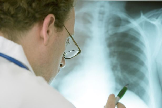 radiografía-pulmón